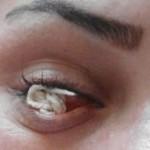 چشمی که نخ تولید می کند+عکس و فیلم
