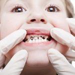 چرا دندان کودکان پوسیده میشود؟